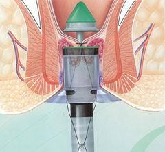 Emorroidectomia con suturatrice