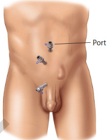 Ernia laparoscopica