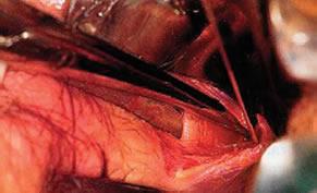 sphincterotomy