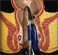 Intervento Chirurgico per le Emorroidi