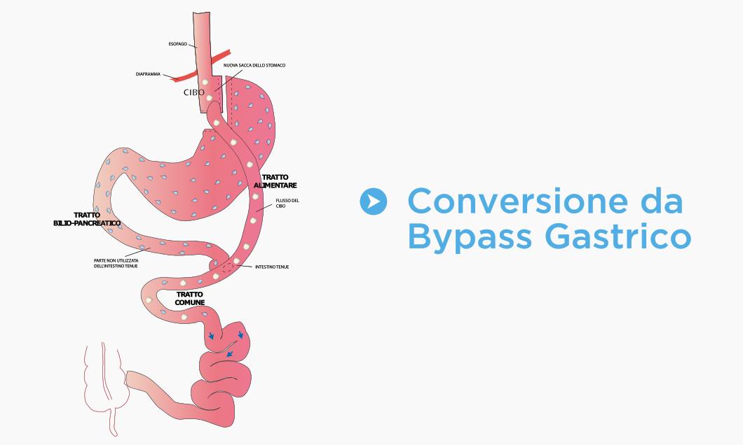 Conversione da Bypass Gastrico
