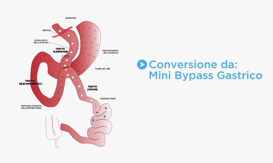 Conversione da Mini Bypass