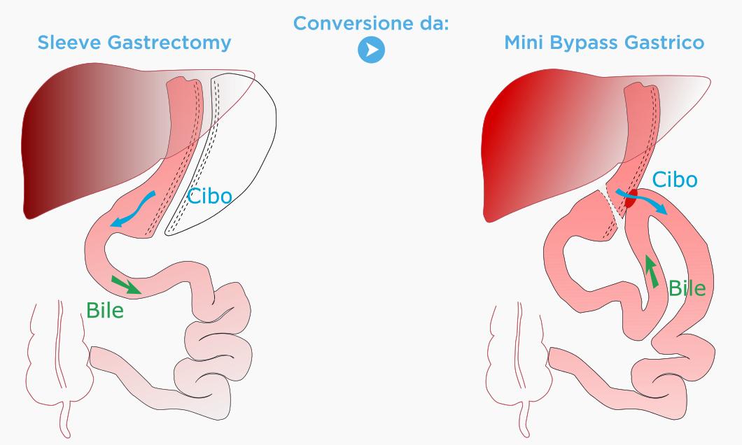 Conversione da Sleeve Gastrectomy